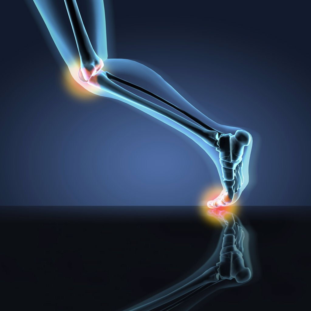 X-ray view of a human's leg showing pain in knee, ankle and foot in running position : Stock Photo