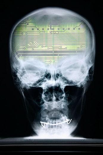 Stock Photo: 1436R-276796 Cranium, skull, x-ray, robot