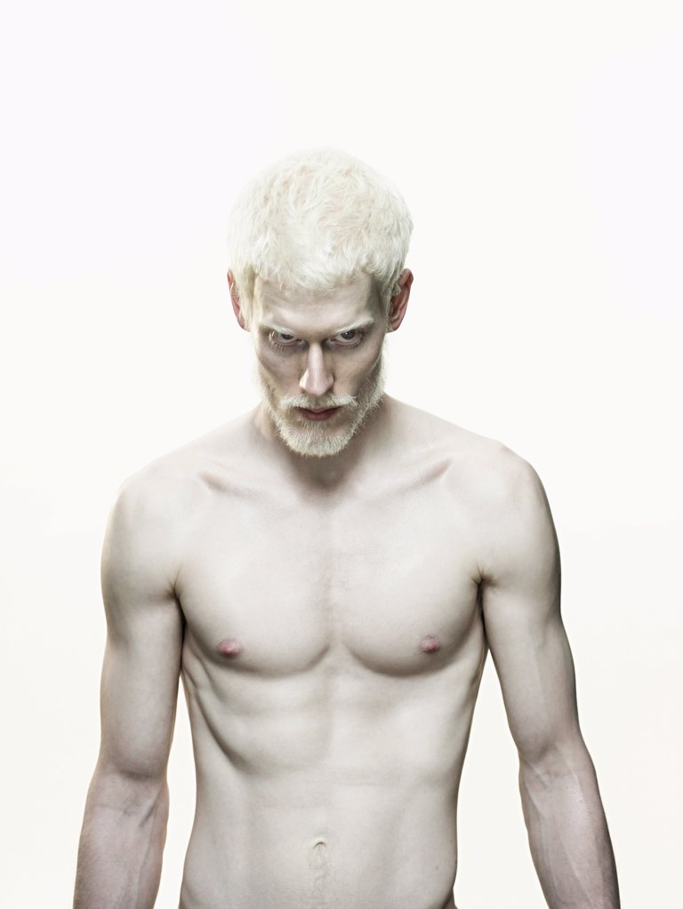 Stock Photo: 1439R-1082686 Albino man