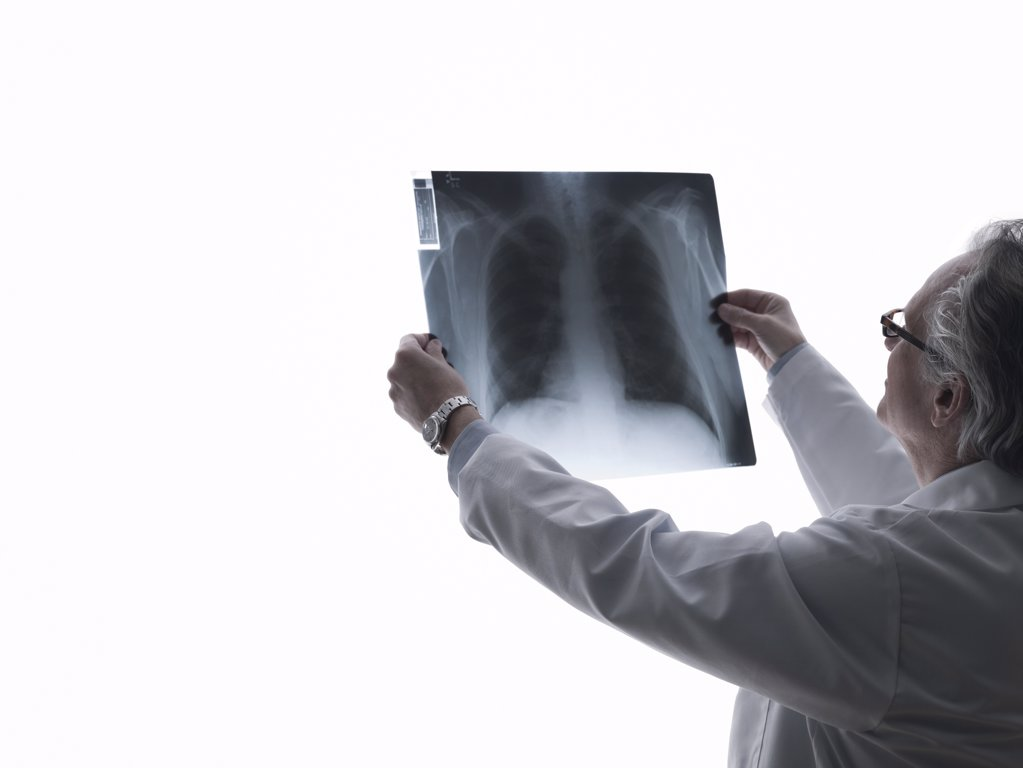 Doctor looking at an x-ray : Stock Photo