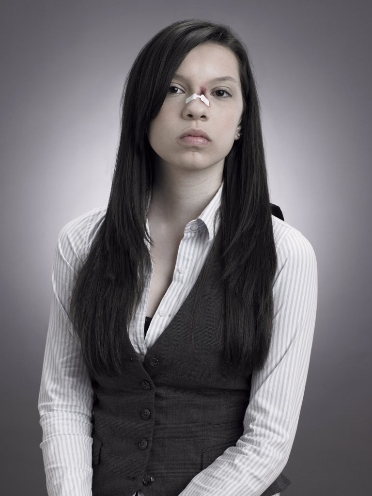 Girl with injured nose : Stock Photo