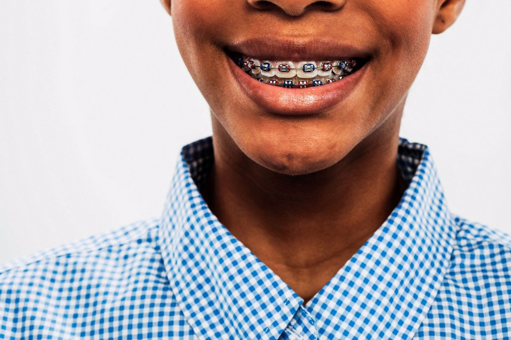 Teenage girl wearing dental brace, cropped : Stock Photo