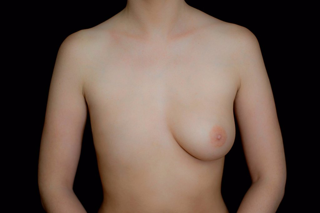 Stock Photo: 1439R-1149595 Naked female body with one breast against black background