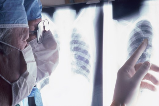 Two surgeons looking at chest xrays : Stock Photo