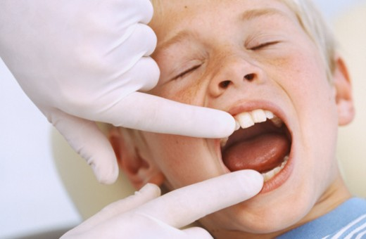 Stock Photo: 1491R-1070735 Close-up of a dentist examining a young boy's teeth