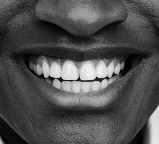 close-up of a person's toothy smile : Stock Photo