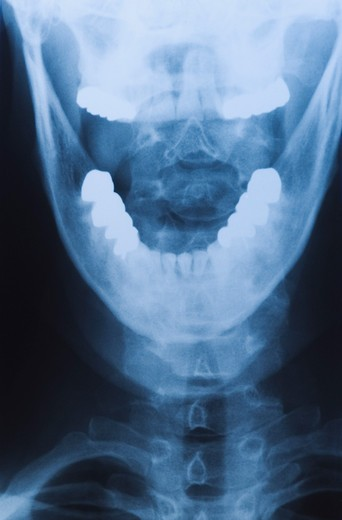 Jaw bone x-ray : Stock Photo