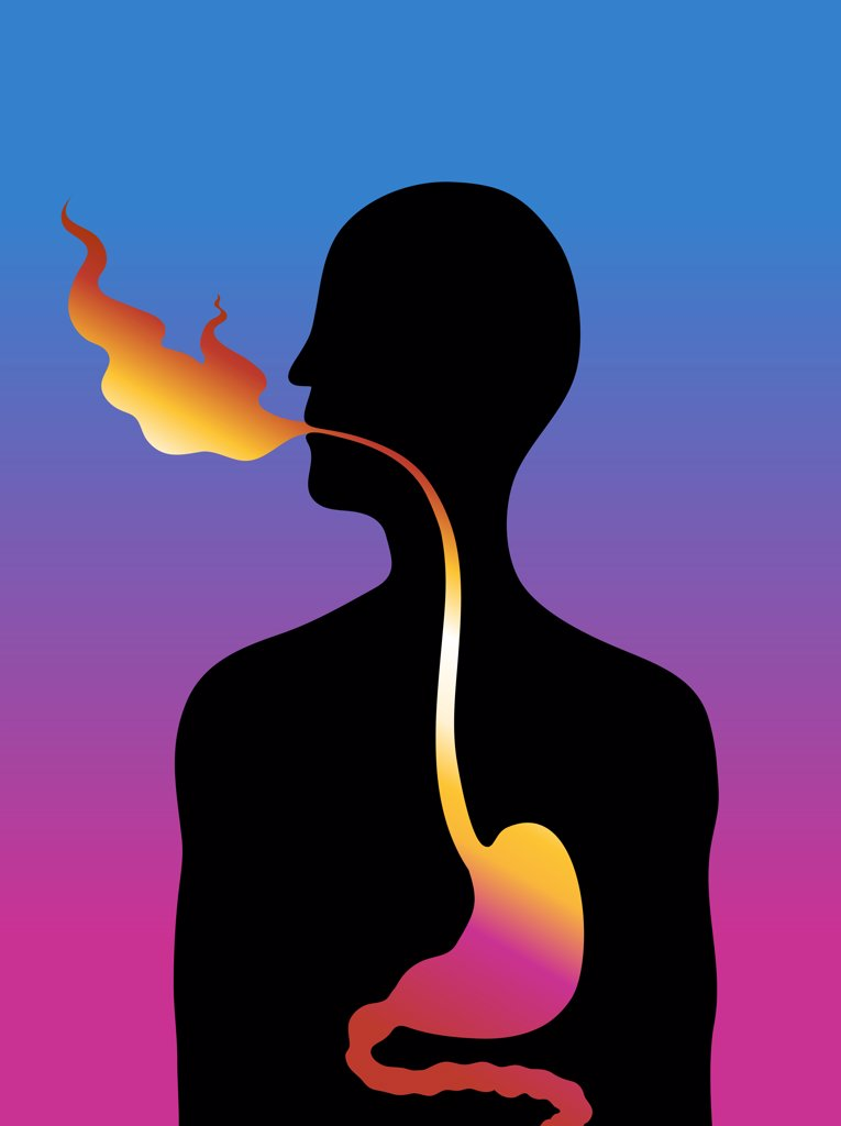 Reflux, illustration : Stock Photo
