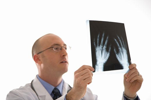 Caucasian mid adult male physician holding up hand xrays. : Stock Photo