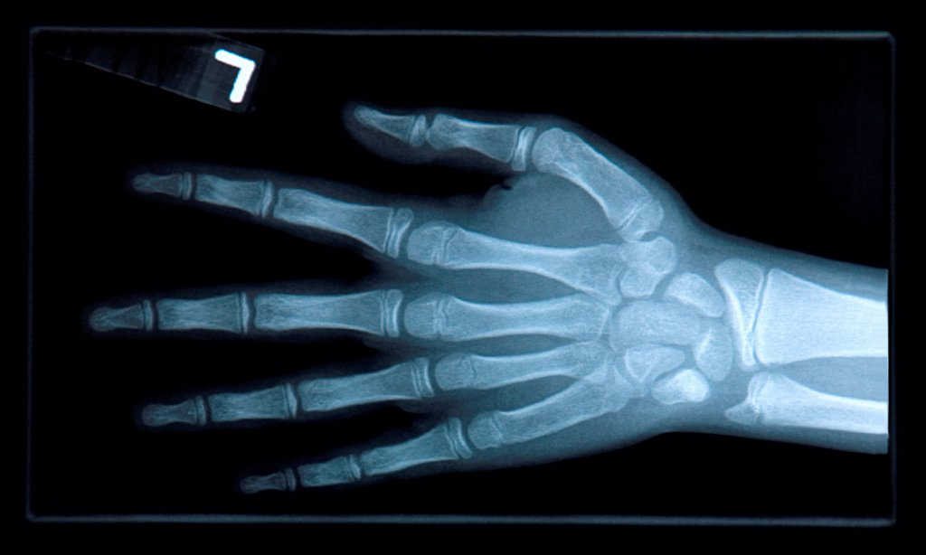 Stock Photo: 1525R-193160 Close-up of xray of hand.