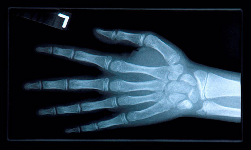 Close-up of xray of hand. : Stock Photo