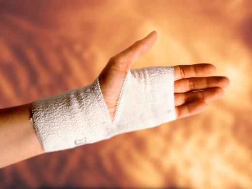 Bandaged hand injury : Stock Photo