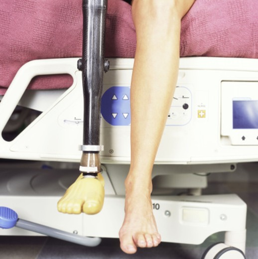 Artificial leg : Stock Photo