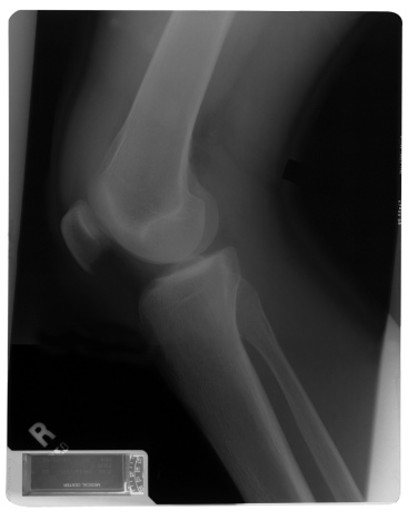 X-ray of a knee : Stock Photo