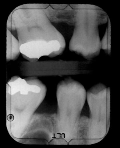 Stock Photo: 1557R-369317 Dental x-ray