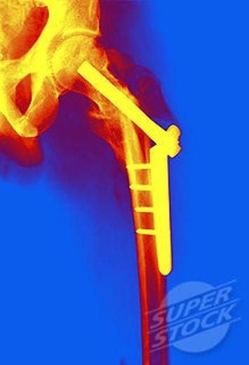 Fractured femur : Stock Photo