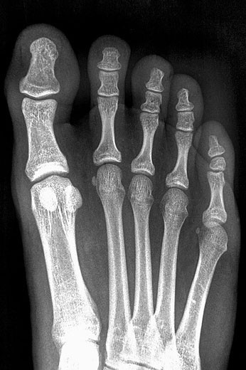 Foot X-ray : Stock Photo