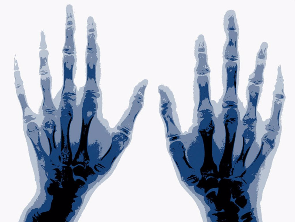 Hand bones X-ray. : Stock Photo