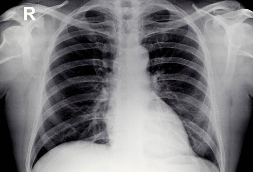 Stock Photo: 1566-486103 Normal Chest X-Ray