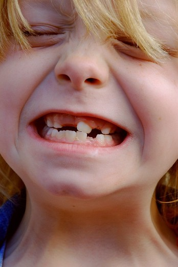 Face of 7 year blond girl grimacing at camera showing missing teeth : Stock Photo