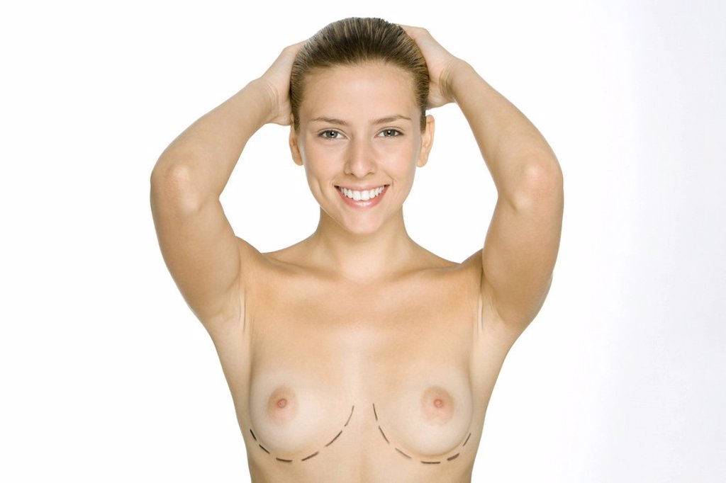 Nude woman with plastic surgery markings under breasts, hands on head, smiling at camera : Stock Photo