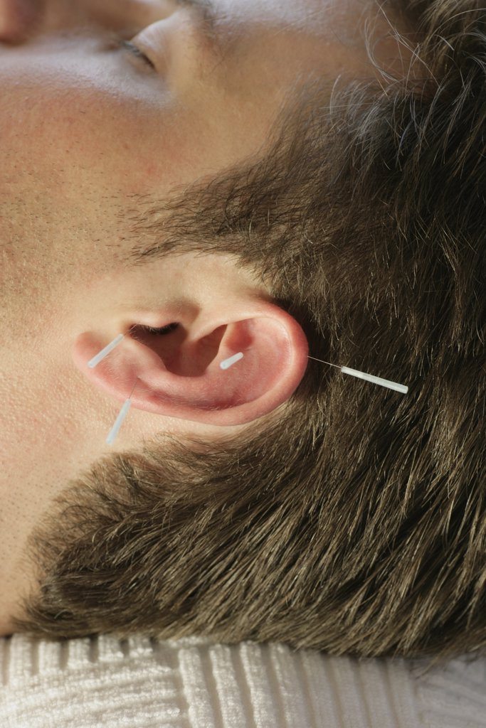 Man receiving acupuncture on ear : Stock Photo