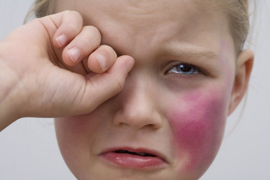 A little girl with a bruise on her cheek crying : Stock Photo