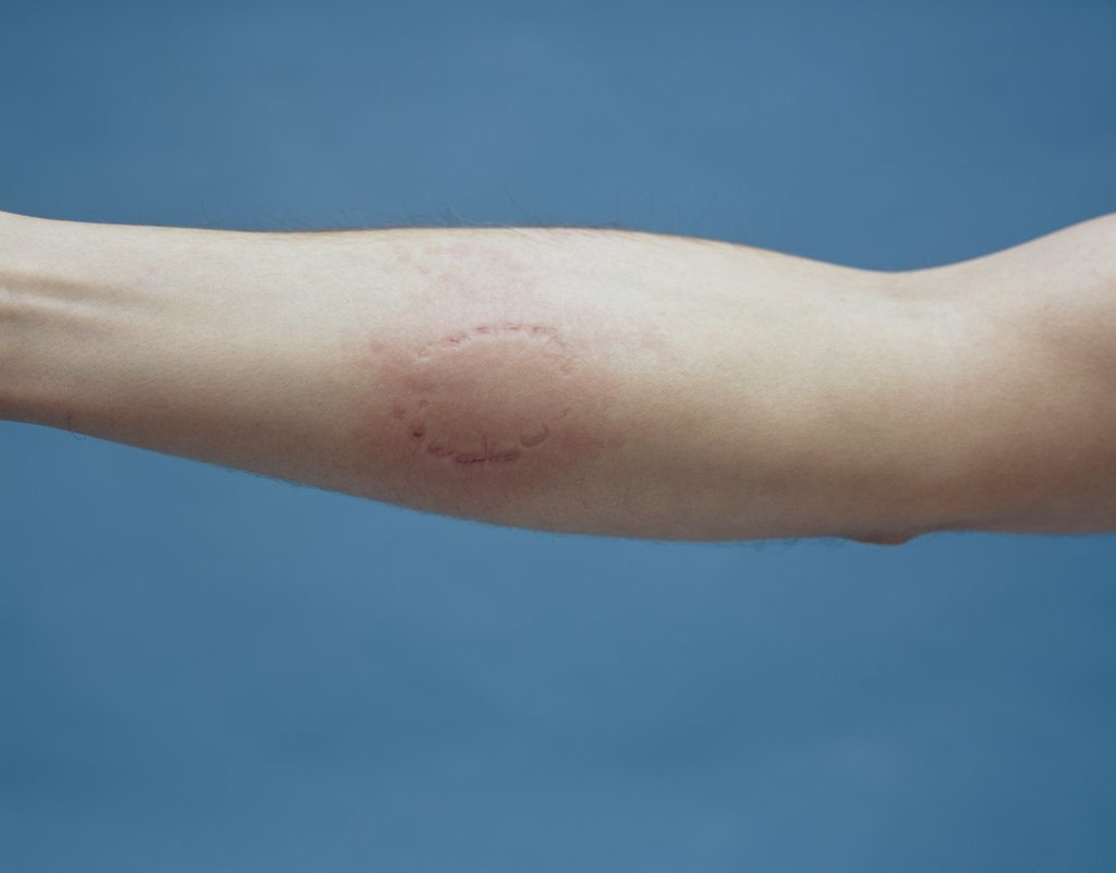 Human arm with bite mark : Stock Photo