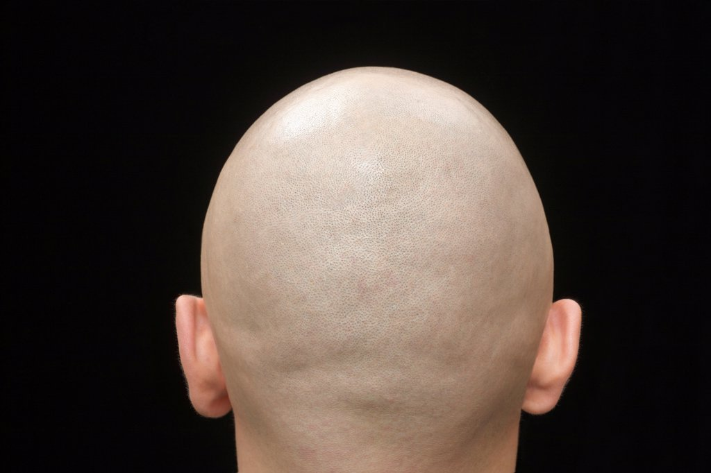 Stock Photo: 1570R-141060 Rear view of the shaved head of a man