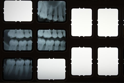 Dental chart of x-rays. : Stock Photo