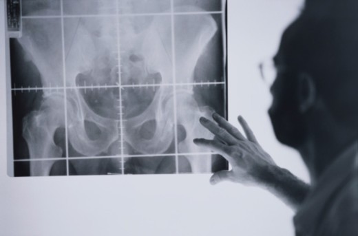 Stock Photo: 1598R-10036712 Doctor with Pelvis Radiograph