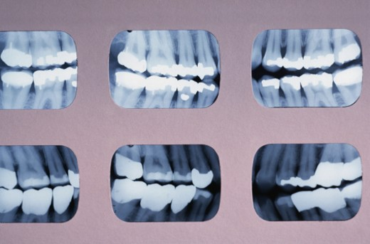Stock Photo: 1598R-121870 Dental X-rays