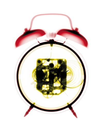 X-ray of windup alarm clock : Stock Photo