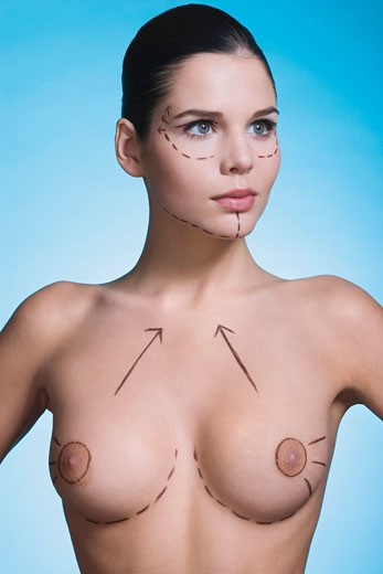 Young woman with presurgical markings on breast and face : Stock Photo