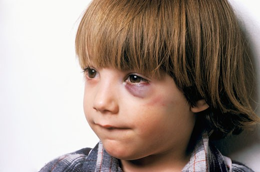 Stock Photo: 1606-59187 Portrait of a little boy, hematoma on his eye