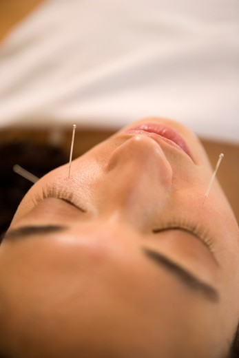 Acupuncture Needles in Cheeks : Stock Photo