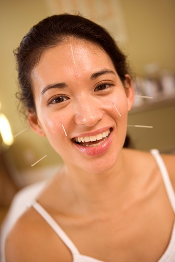 Stock Photo: 1626R-18758 Woman Getting Acupuncture