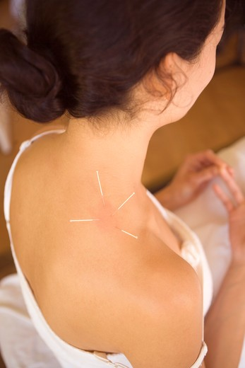 Needles in Shoulder : Stock Photo