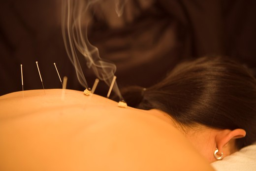 Acupuncture and Moxibustion : Stock Photo