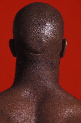 Bald-headed man, close-up, rear view : Stock Photo