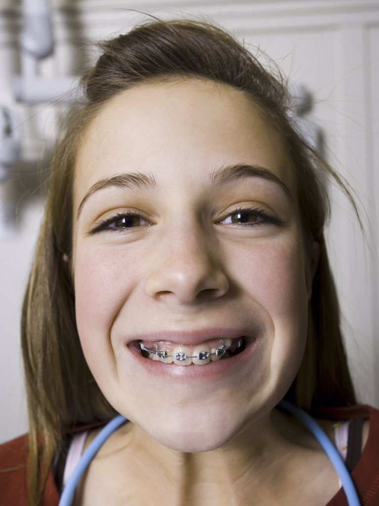 Stock Photo: 1660R-16970 Girl with braces smiling