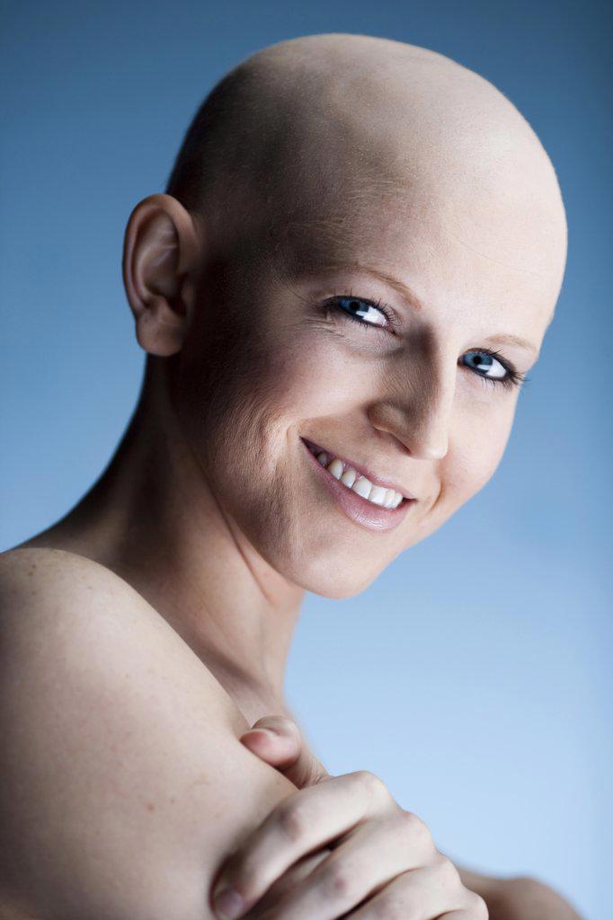 Bald woman : Stock Photo