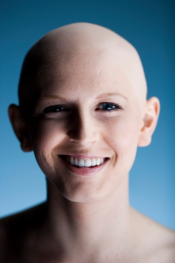 Stock Photo: 1660R-57327 Bald woman