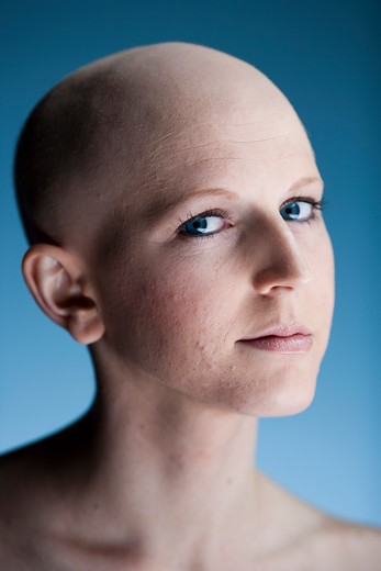Stock Photo: 1660R-57328 Bald woman