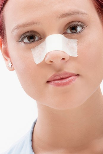 Stock Photo: 1663R-58132 Close-up of a female patient with an adhesive bandage on her nose