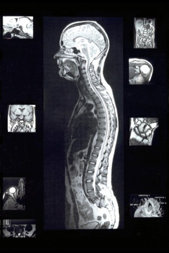 Stock Photo: 1672R-61927 MRI Xray images of mans body during magnetic resonating imagery