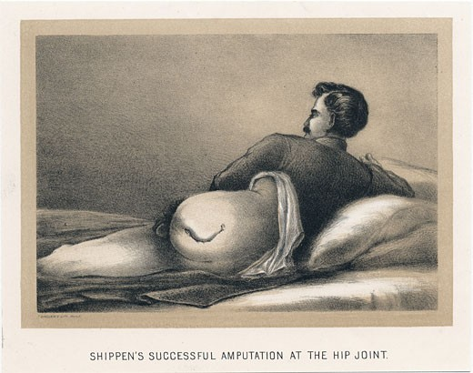 Stock Photo: 1746-1468 Successful amputation at the hip joint on casualty in American Civil War. Mortality from this procedure was in excess of 70%. Shippen's amputation. From Circular No.6, Surgeon General's Office, Washington, 1 November, 1865. Tinted lithograph