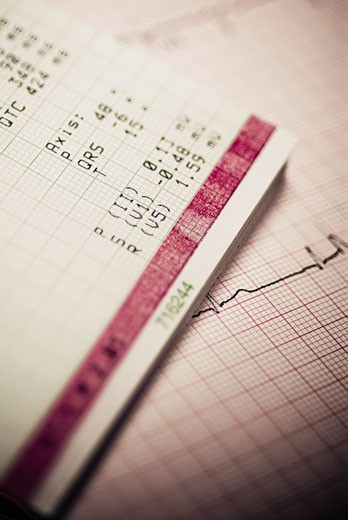 Stock Photo: 1758R-9306 Close-up of an electro cardiogram report
