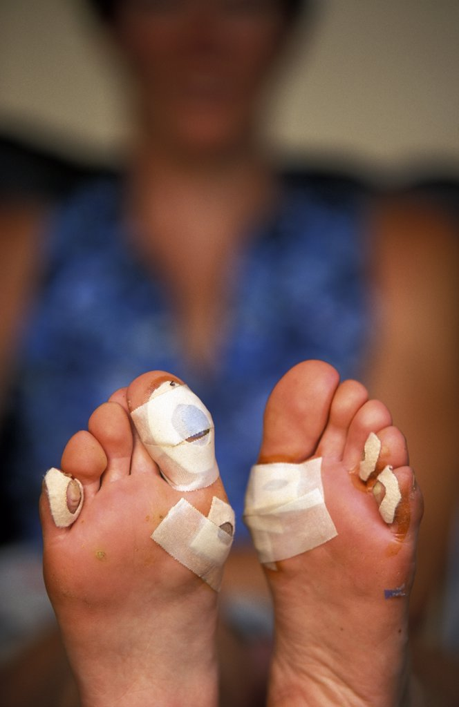 Stock Photo: 1778-8640 Hands place bandage over blister on adventure racer's foot Telluride,  Colorado