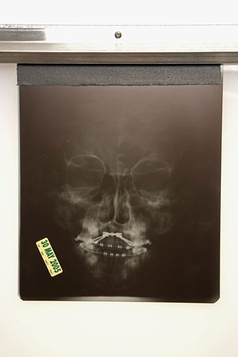 X-ray of human face : Stock Photo